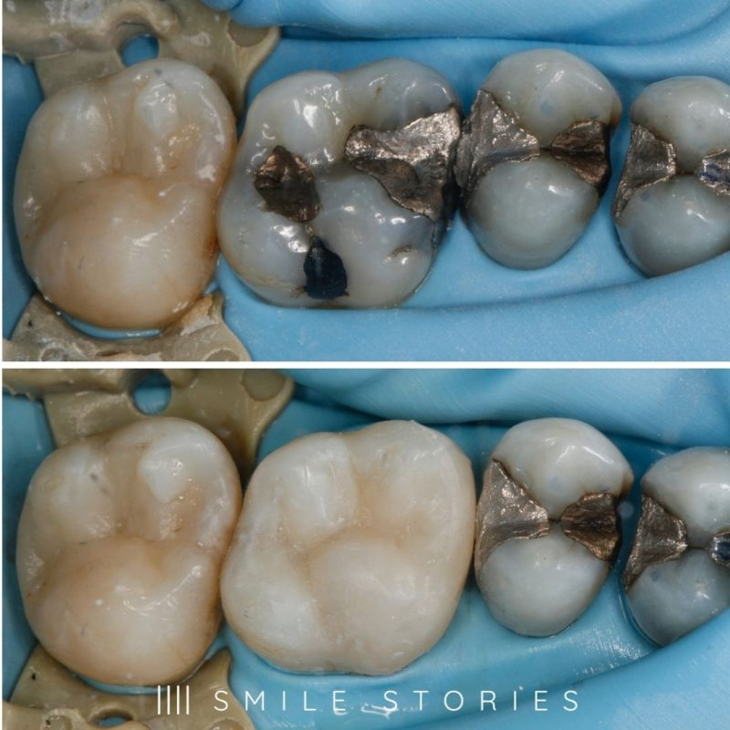 how to whiten silver fillings