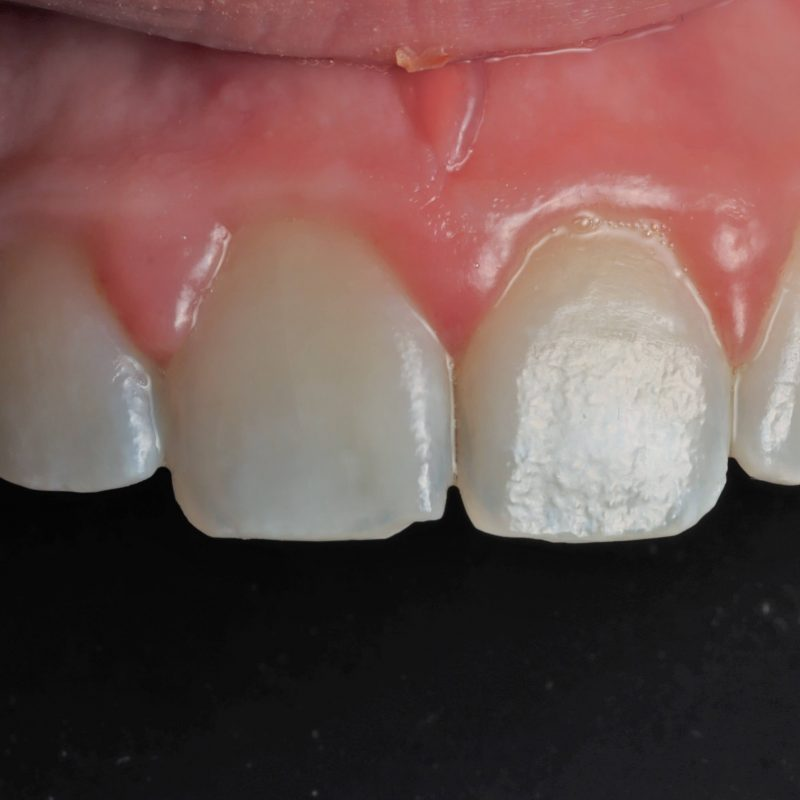 photo showing teeth after ICON treatment