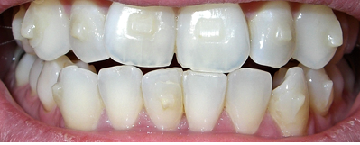 invisalign meaning of attachments