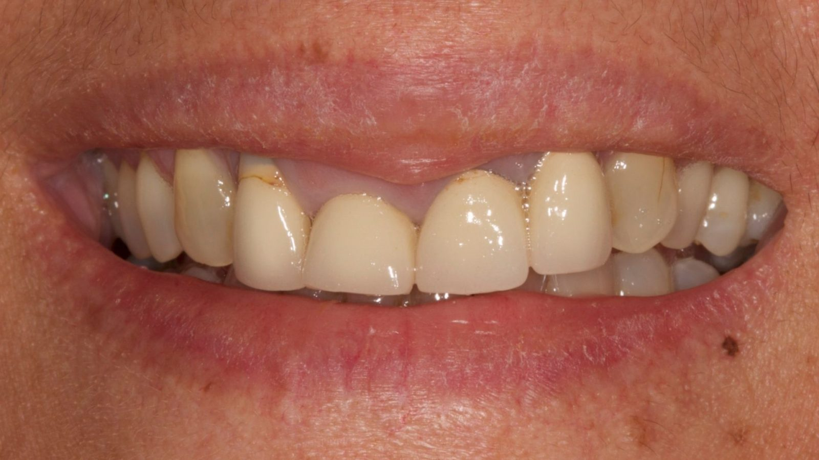 photo of loose denture before implant placed