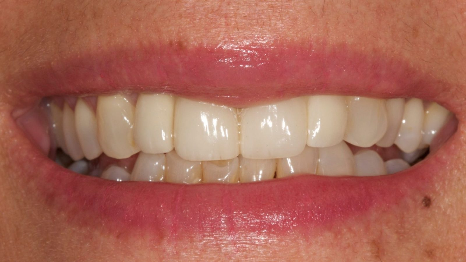 photo of loose denture after implant placed