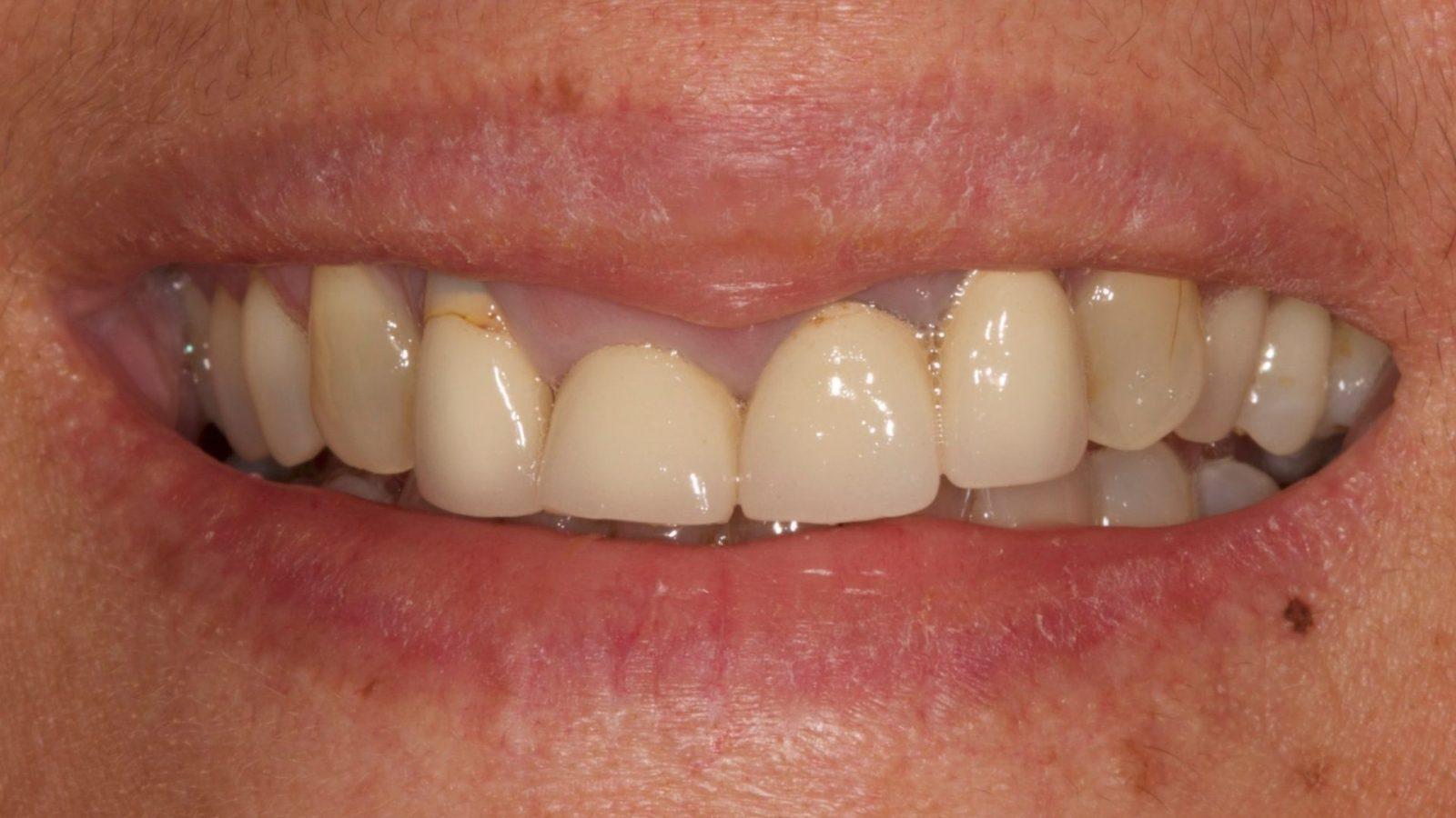 dental implants poole before