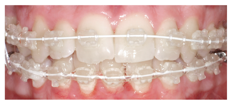 photo of a brace for gummy smile