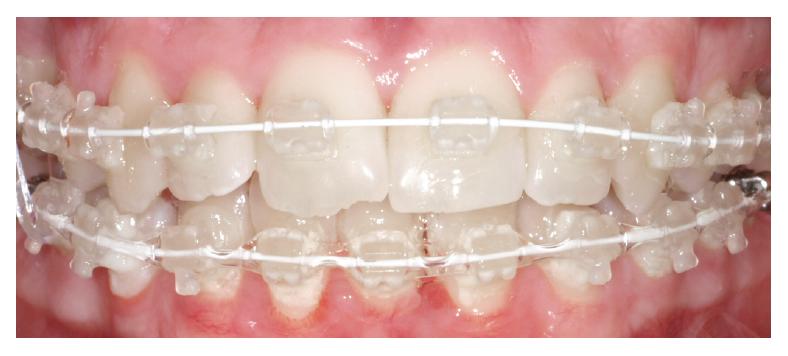 braces for gummy smile