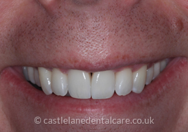 orthodontics-bournemouth-2