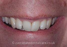 orthodontics-bournemouth