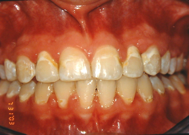 reason to know how to clean properly with braces - white marks