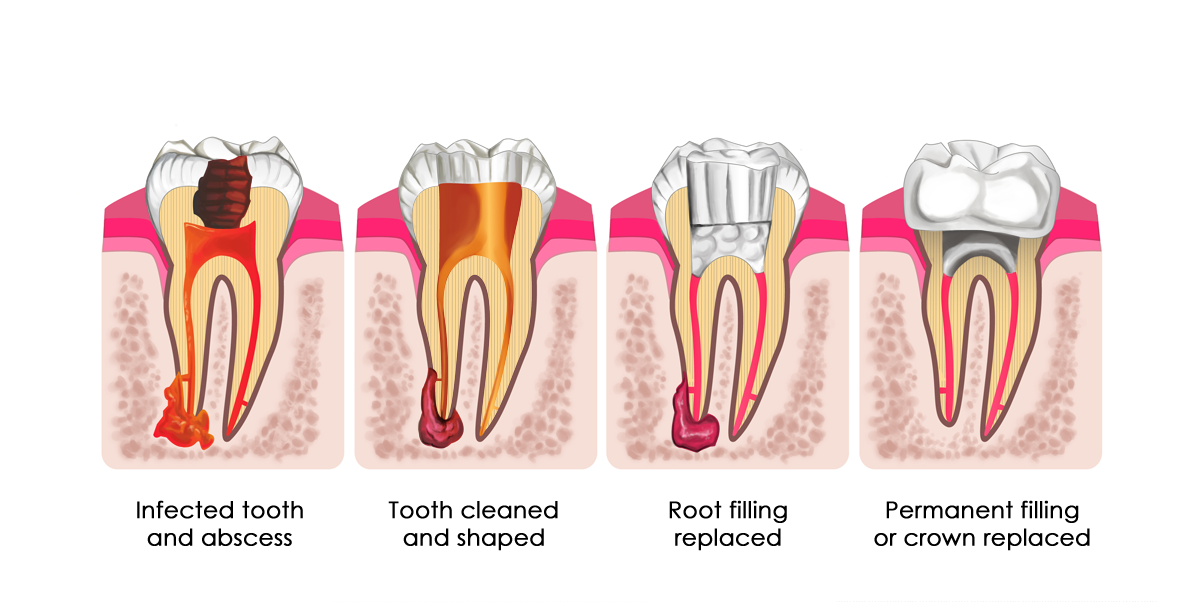 image showing root filling procedure steps
