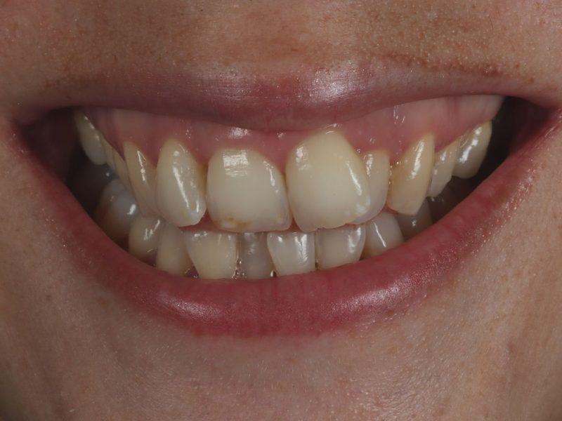 smile makeover before