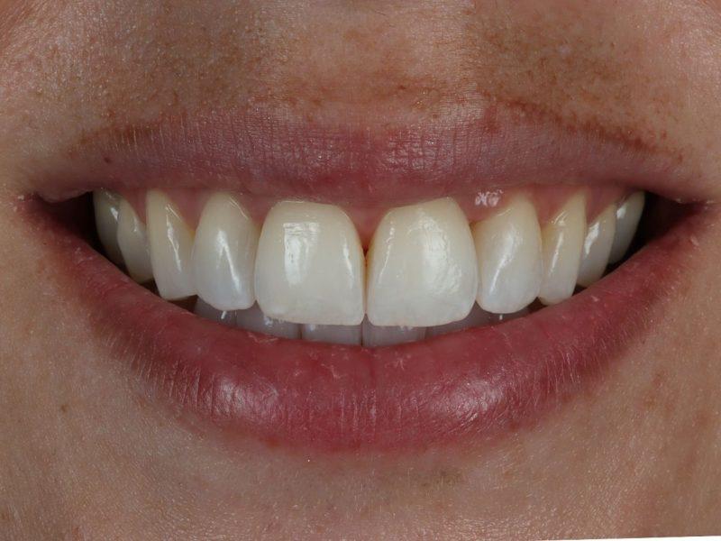 smile makeover bournemouth