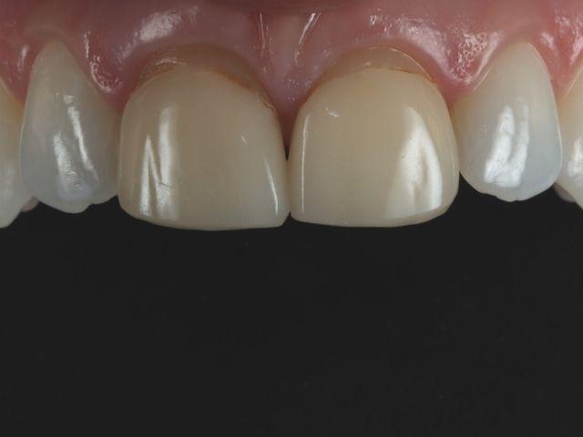 close up photo of Lindsey's veneers