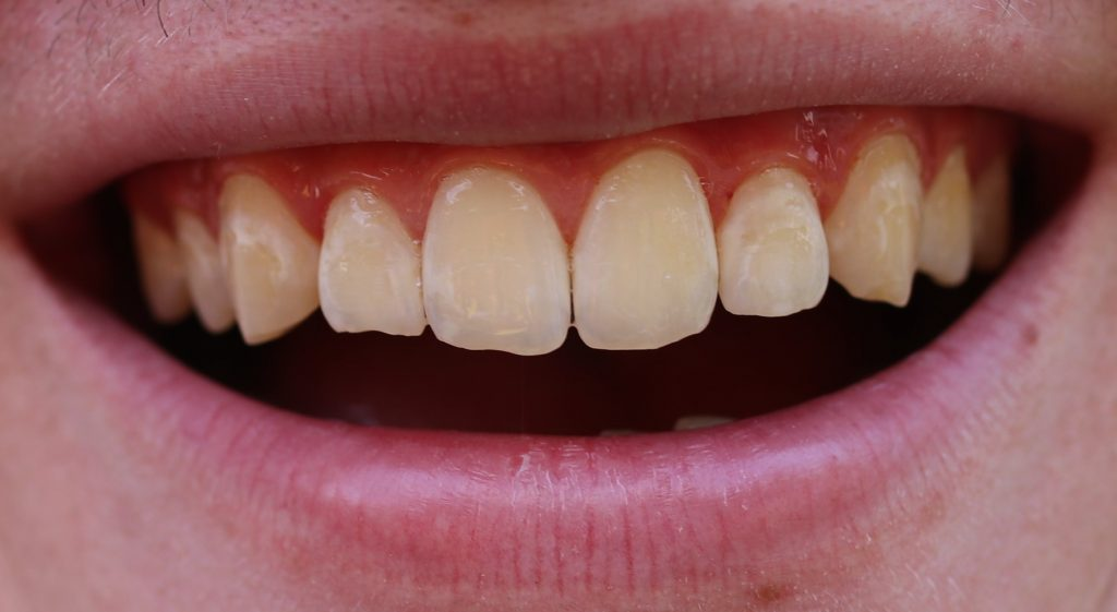 white spots on teeth due to previous orthodontic treatment