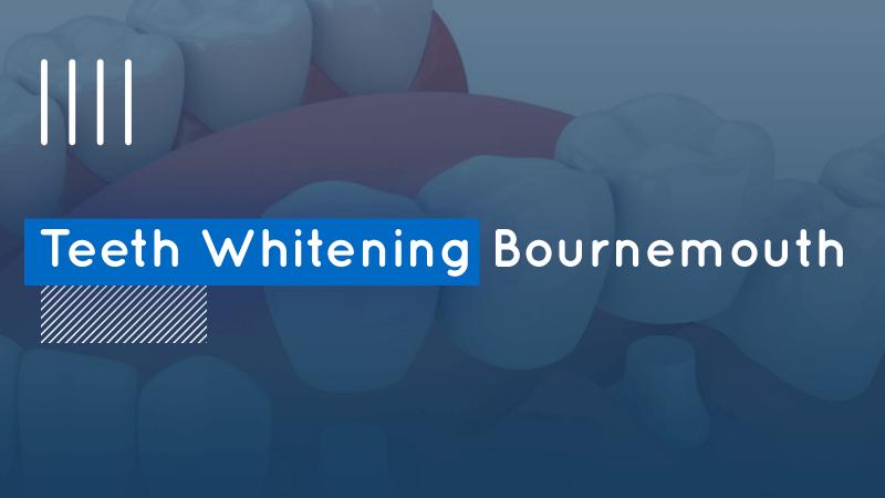 Teeth Whitening Bournemouth image
