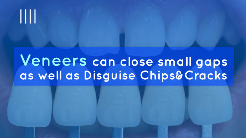 Veneers can close small gaps as well as disguise chips and cracks image