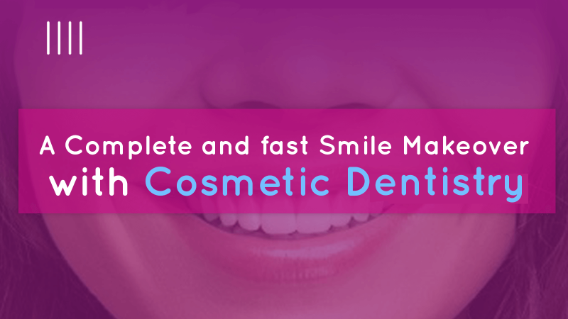 A complete and fast smile makeover with cosmetic dentistry image
