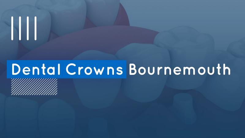 Dental Crowns Bournemouth image