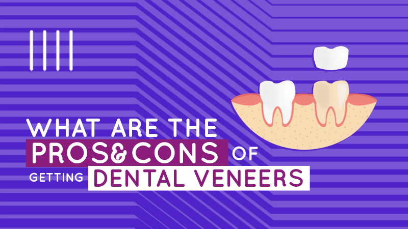 What are the pros and cons of getting dental veneers? image